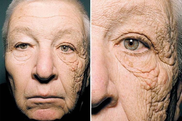 huidschade door zonlicht